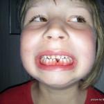 Von Zahnlücken und der Zahnfee